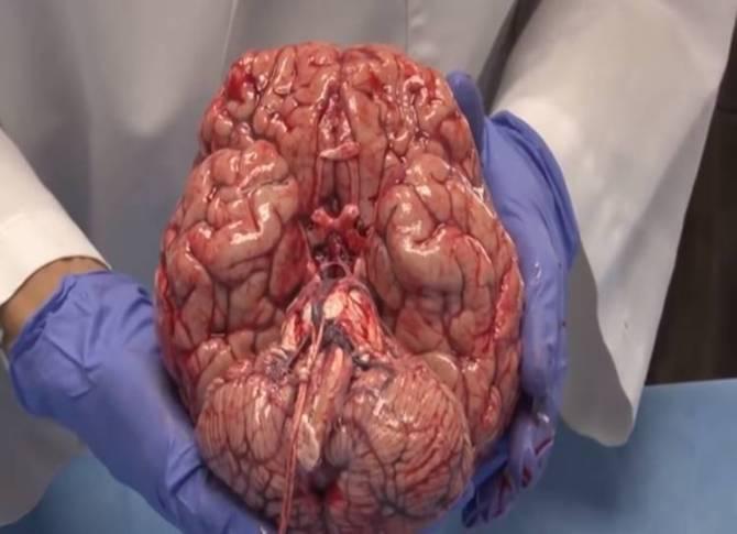 human brain, brain parts, brain mechanism