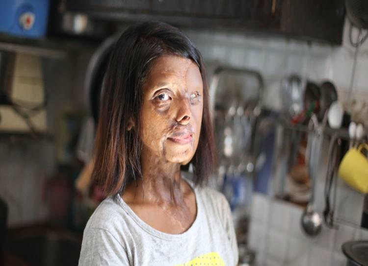 acid attack, acid attack victims, courage,