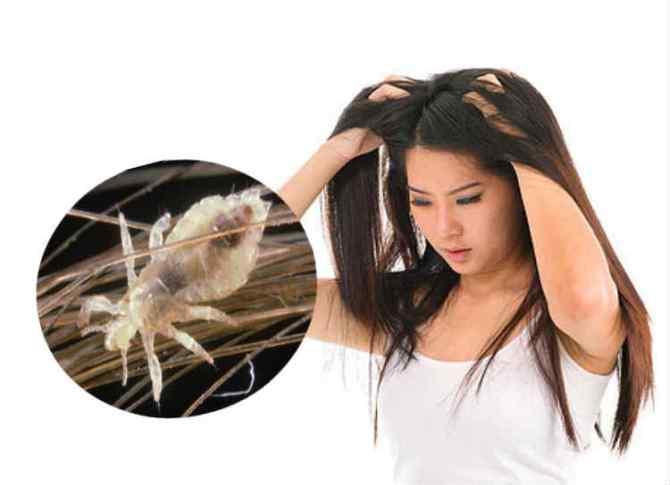 lice problems, பேன் தொல்லை