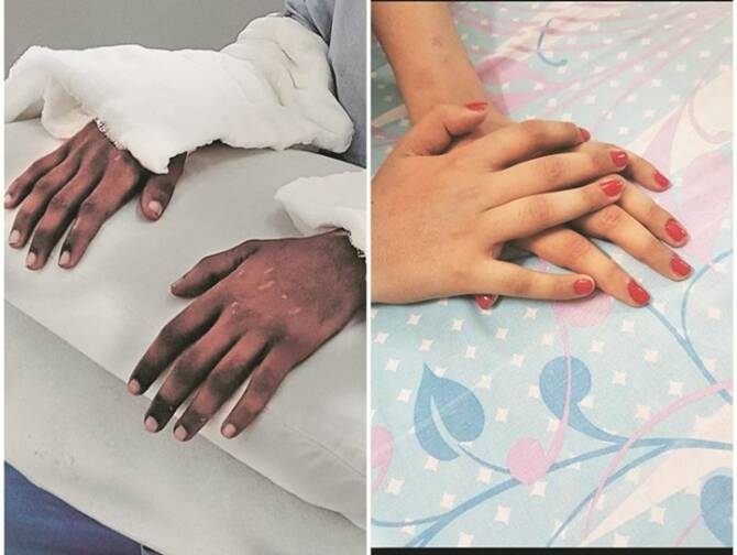hand transplant operation, hand transplant, mumbai girl hand transplant