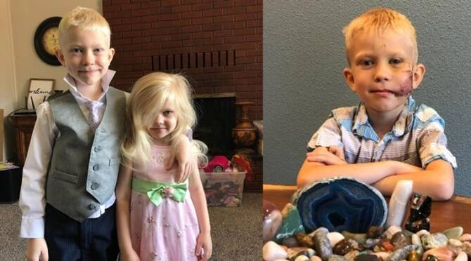 Bridger Walker, 6-year-old boy rescued his sister from a dog attack