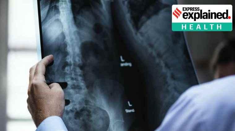 coronavirus, covid-19, New research, Radiologists research, கொரோனா வைரஸ், புதிய ஆராய்ச்சி, எக்ஸ்ரே, ரேடியோலாஜிஸ்ட், chest X-rays can predict Covid-19, explained health, express explained