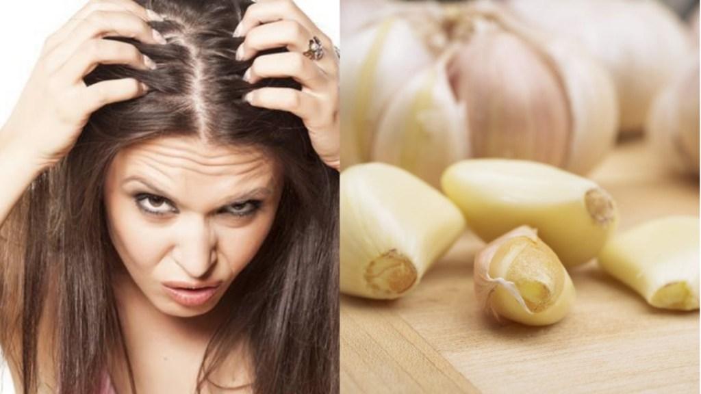Benefits of Garlic for Dandruff problem Tamil News