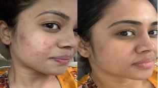 Pandavar Illam Malliga Aarthi Subash shares about her Pimples Tamil News