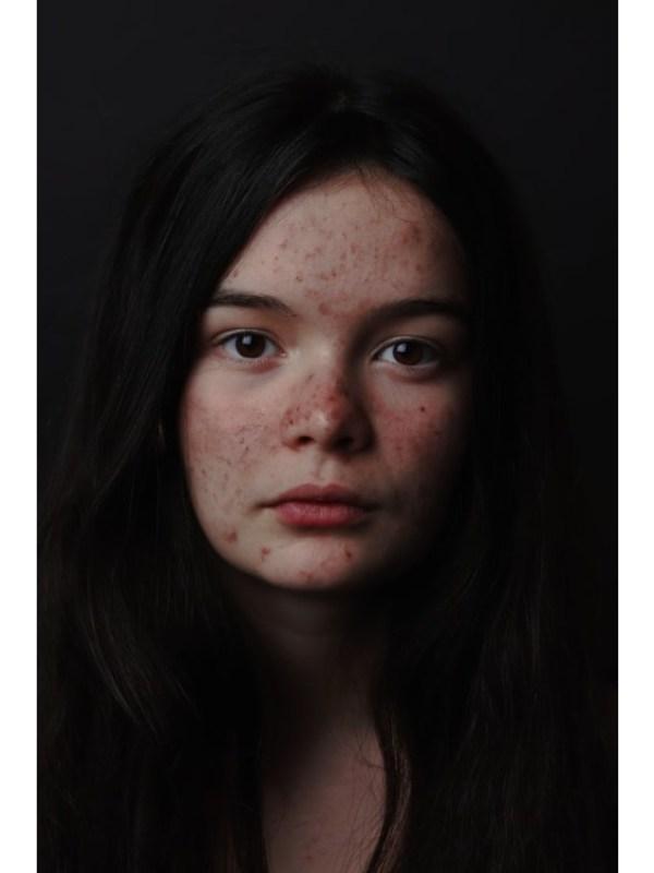 acne poster - unsplash (1)