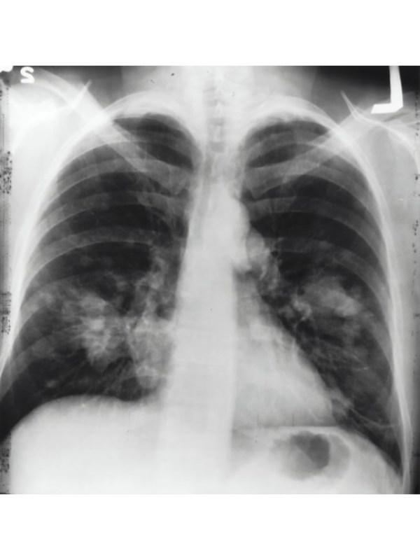 lungs 3 - unsplash (1)