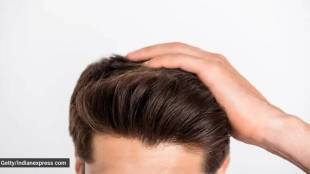 Early male pattern baldness causes reasons changes Tamil News